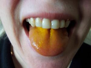 turmeric tongue,
